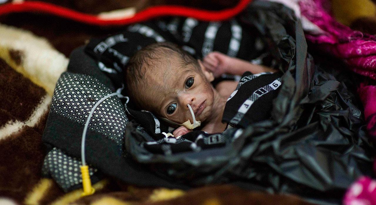 Malnutrición y Patología Digestiva en la Infancia para Enfermeros