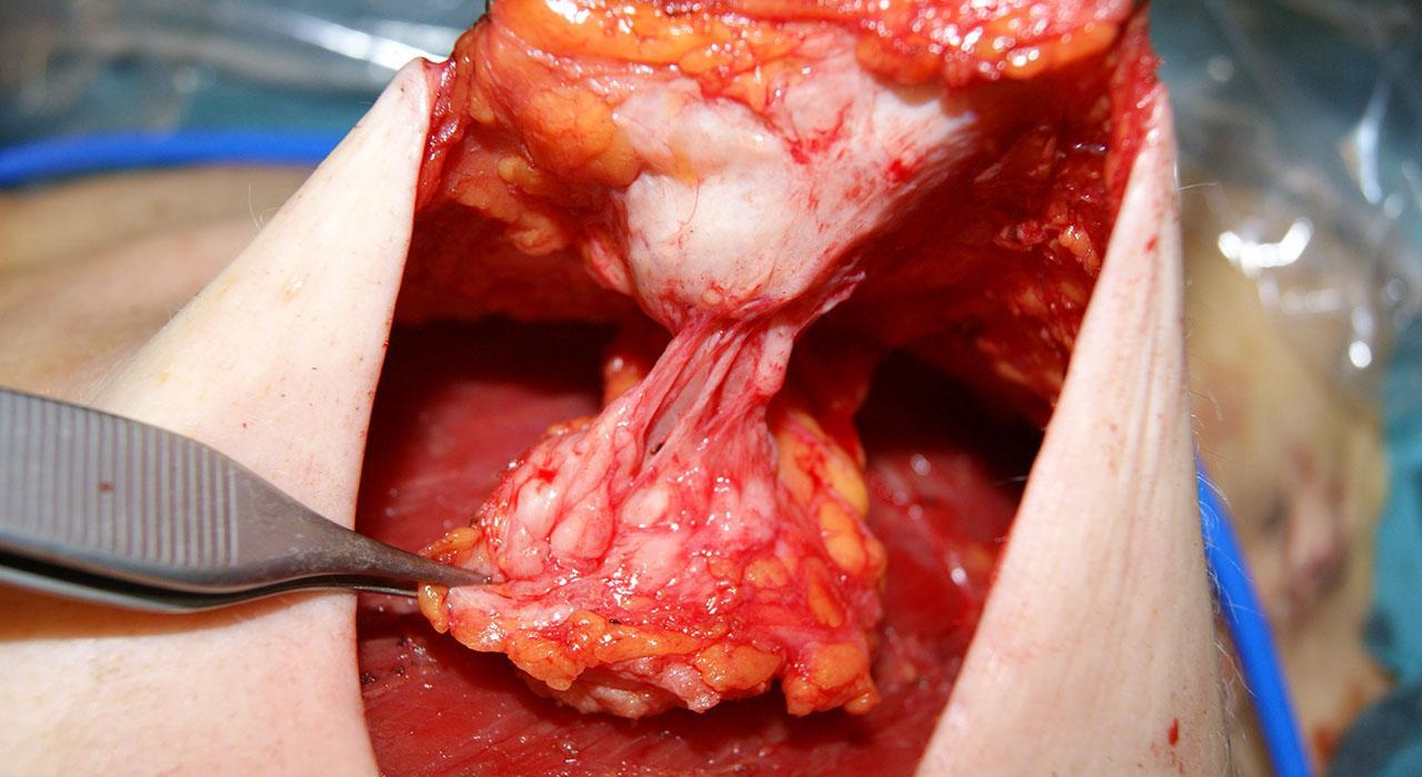 Postgrado en Cirugía Plástica para Enfermería
