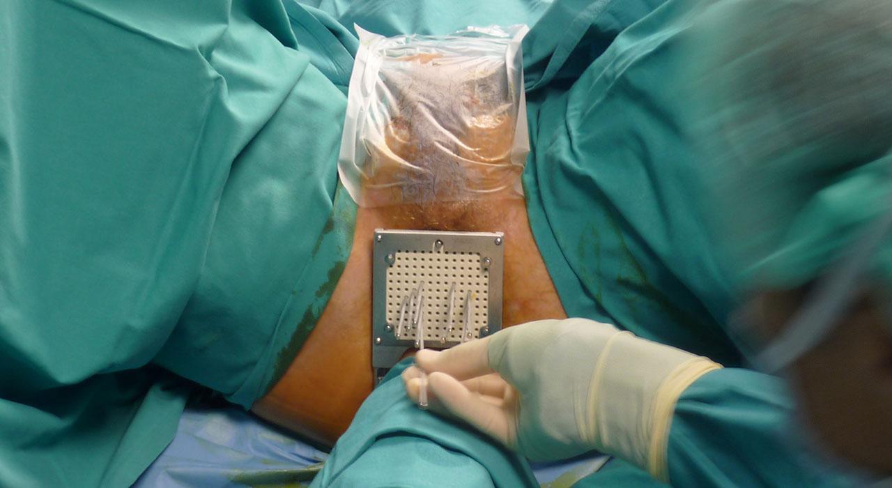 Formación en Cirugía Urológica para Enfermería