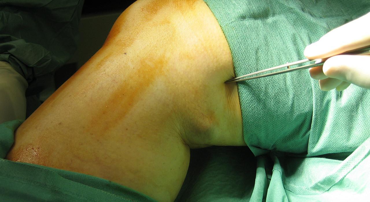 Postgrado en Cuidados de Enfermería en el Paciente con Alteraciones Hematológicas, Trombosis Venosa Profunda y Trombosis Pulmonar
