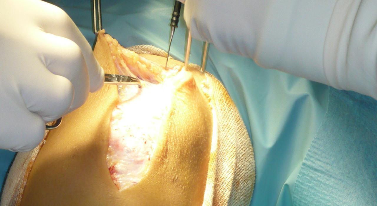 Diplomado en Instrumentación y Suturas Quirúrgicas