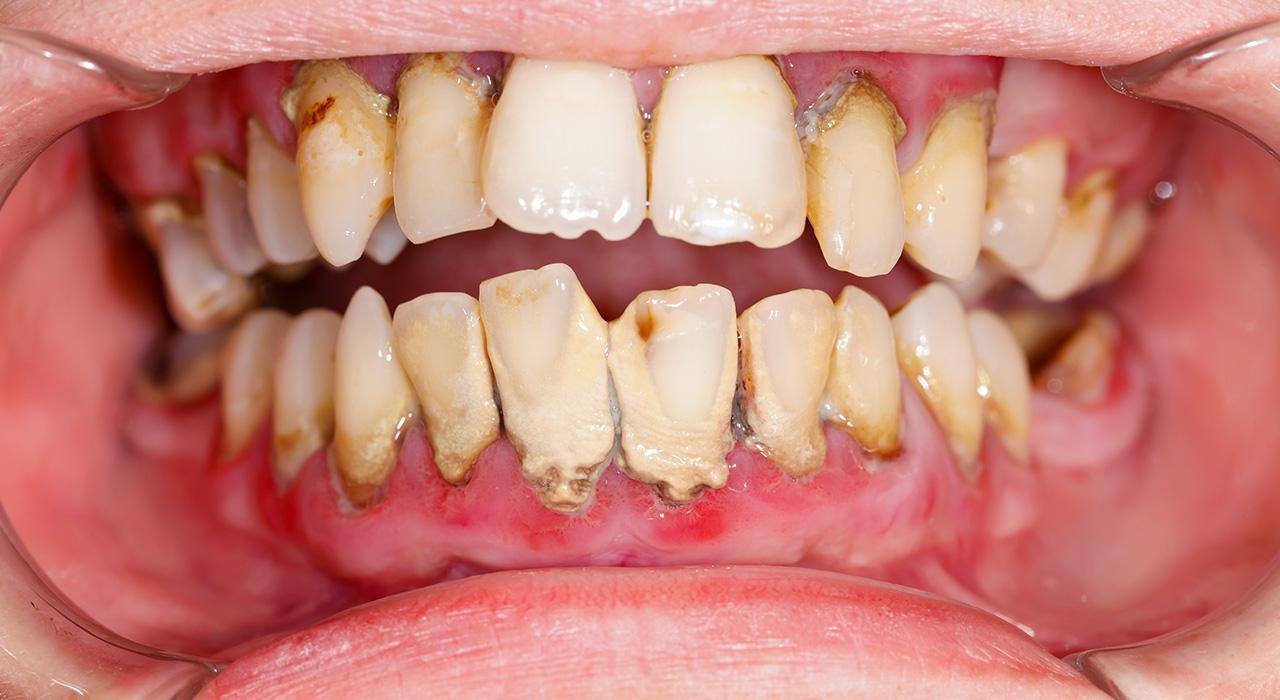 Postgrado en Microbiota Oral y Respiratoria