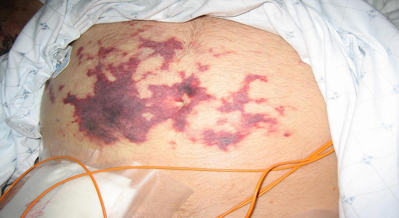 Programa en Cuidados de Enfermería en Pacientes con Síndrome Metabólico y en Pacientes con Sepsis y Shock Séptico