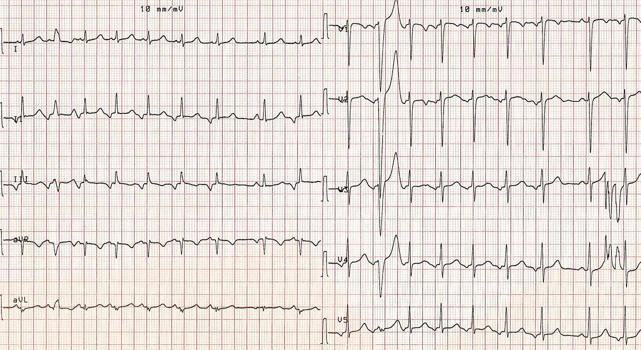 Postgrado en Urgencias en Cardiología Pediátrica