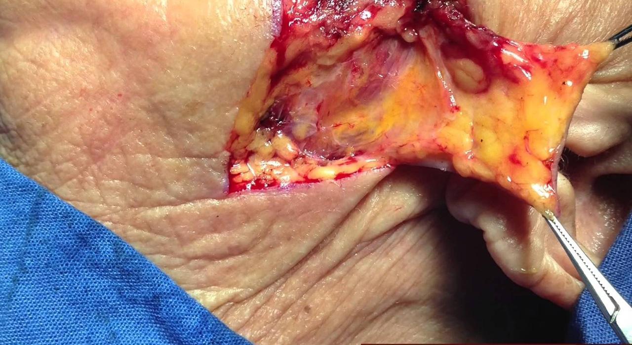 Especialización en Cirugía Plástica y Maxilofacial para Enfermería
