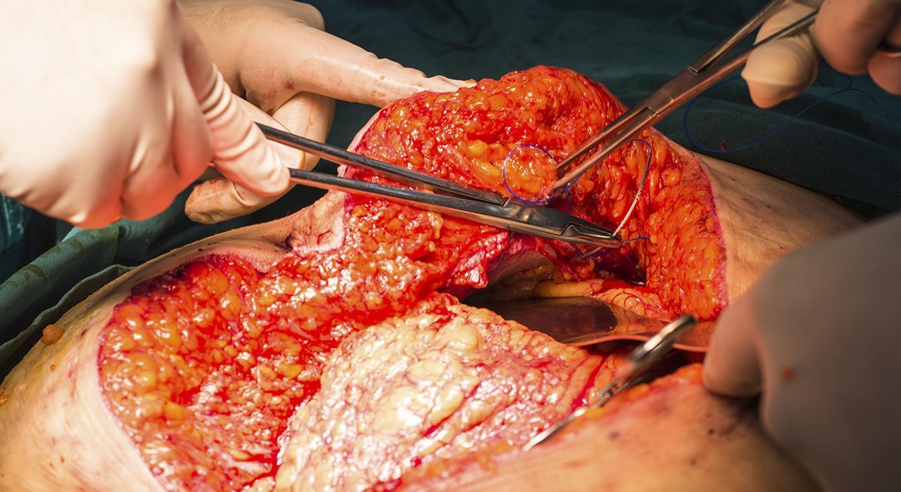 Postgrado en Enfermería en Instrumentación Quirúrgica