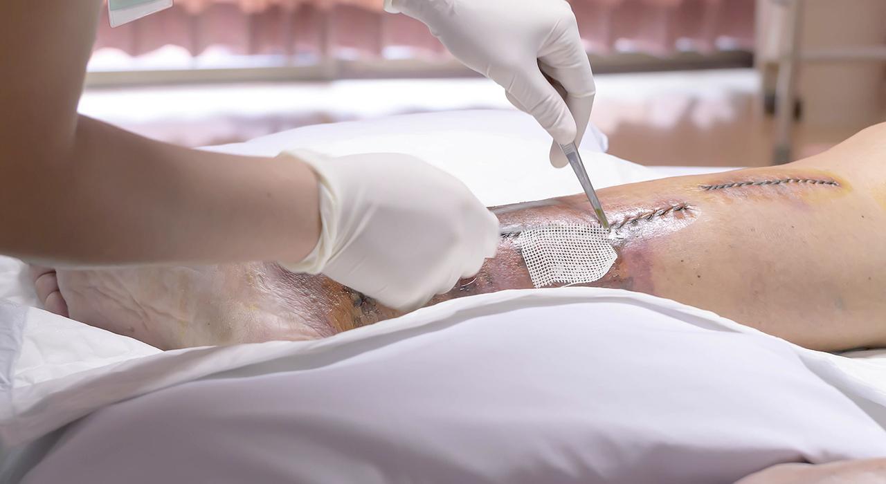 Formación en Enfermería en Instrumentación Quirúrgica