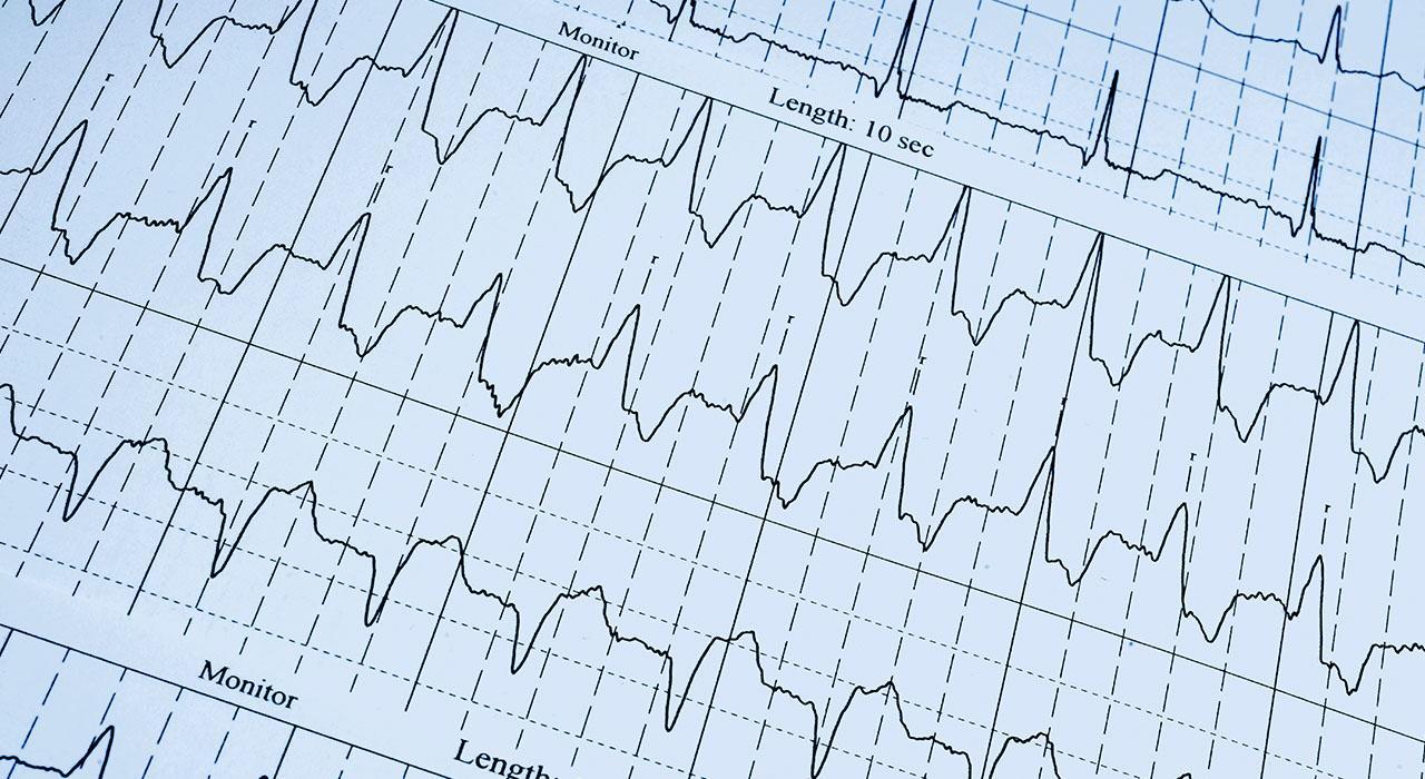 Especialización en Enfermería en Urgencias Vitales en Atención Primaria
