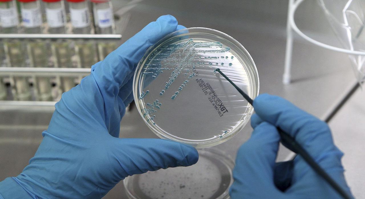 Especialización en Microbiota Intestinal