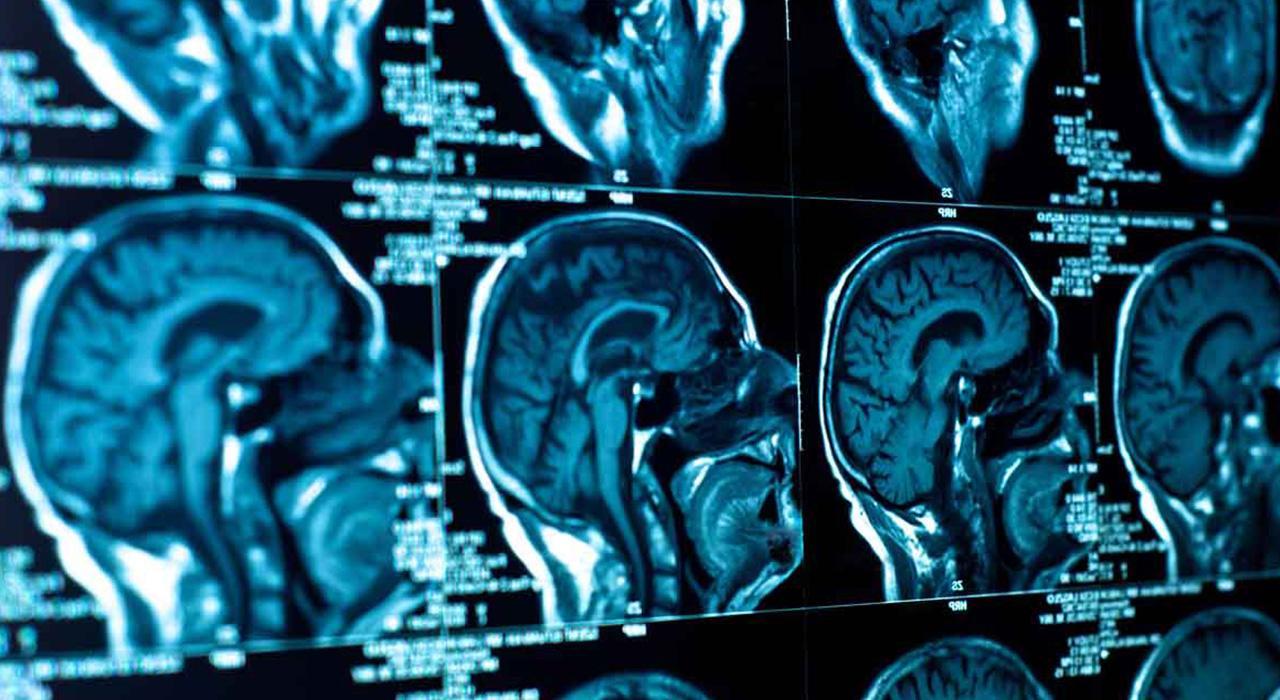 Especialización en Aplicación de la Electroterapia en el Paciente Neurológico