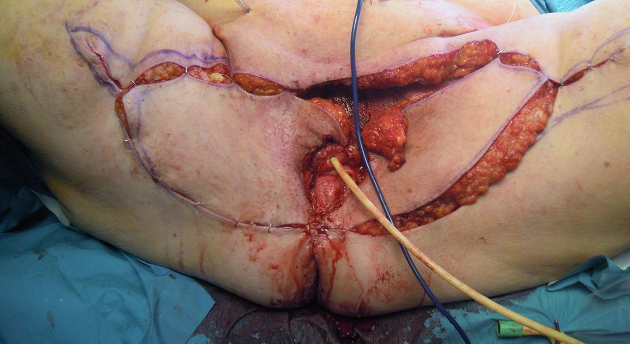 Especialización en Cáncer de Vulva