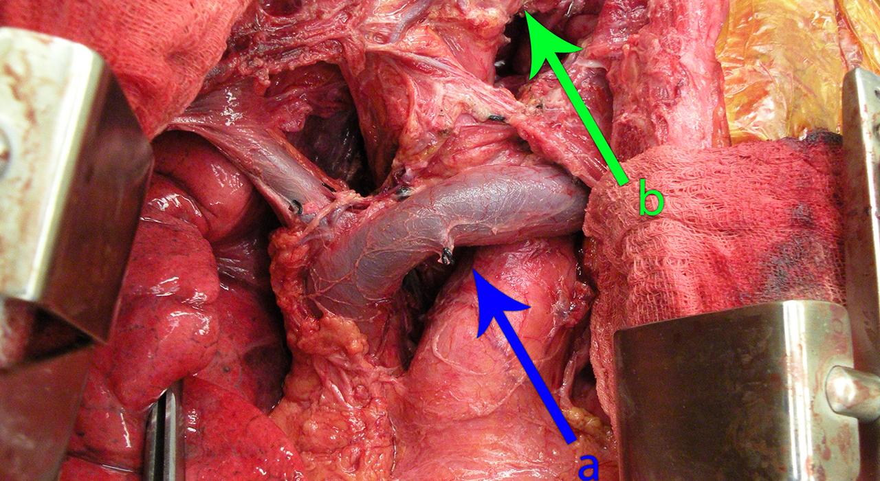 Posgrado en Carcinoma Pulmonar, Tumores de la Pleura, Mediastino y Pared Torácica