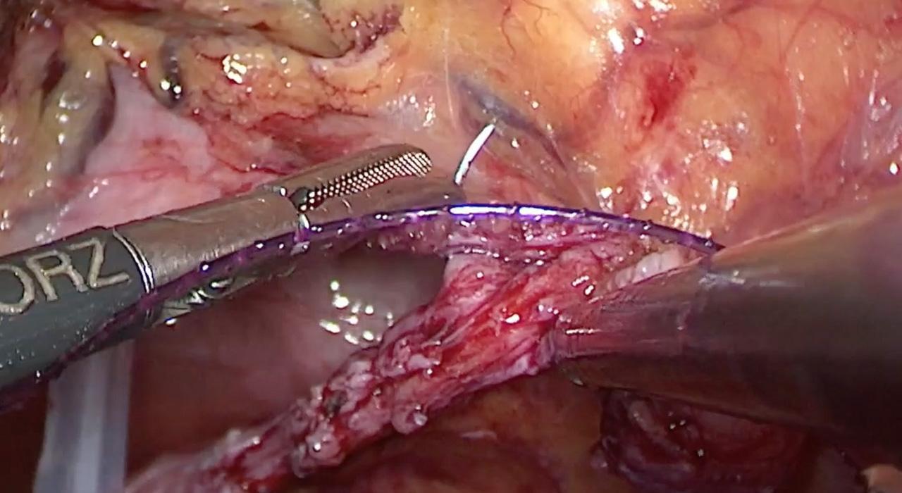 Posgrado en Cirugía Endoscópica en Oncología Ginecológica