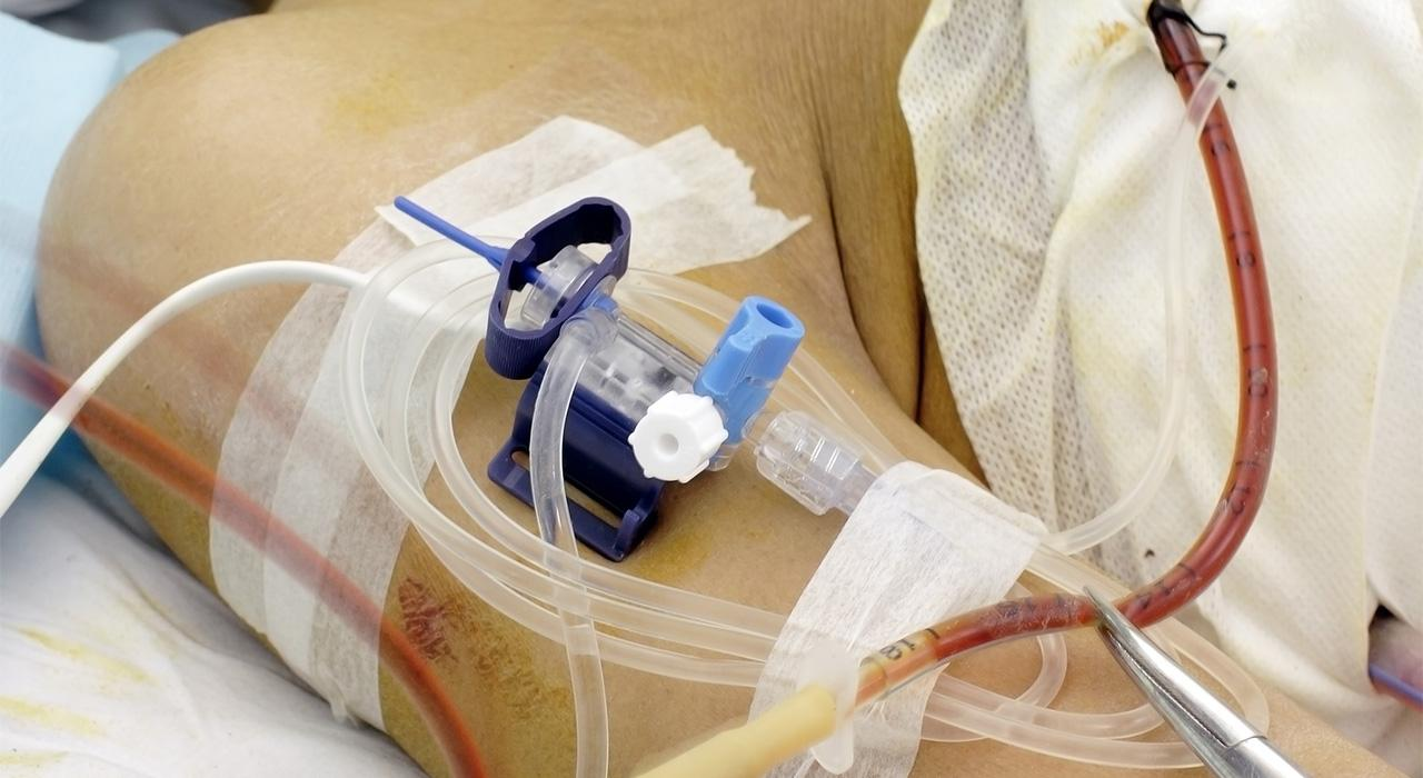 Posgrado en Diagnóstico y Tratamiento del Paciente Crítico Cardiovascular