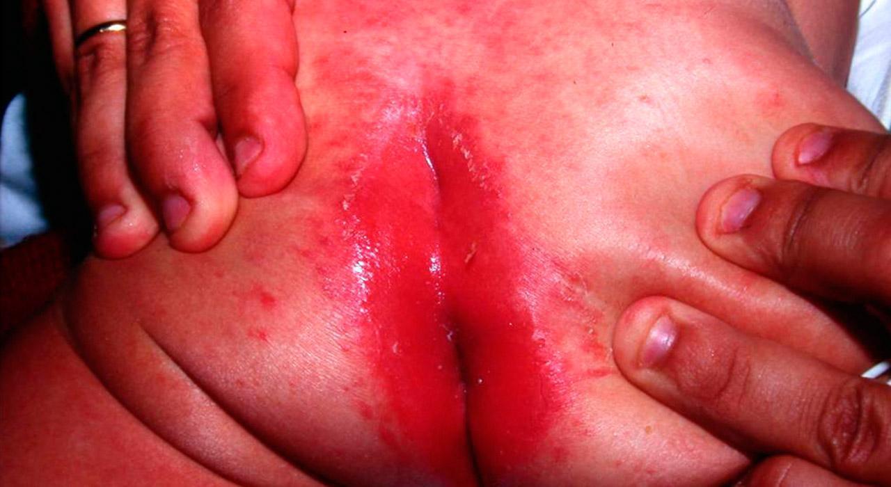 Posgrado en Enfermedades Infecciosas y otras Patologías Pediátricas