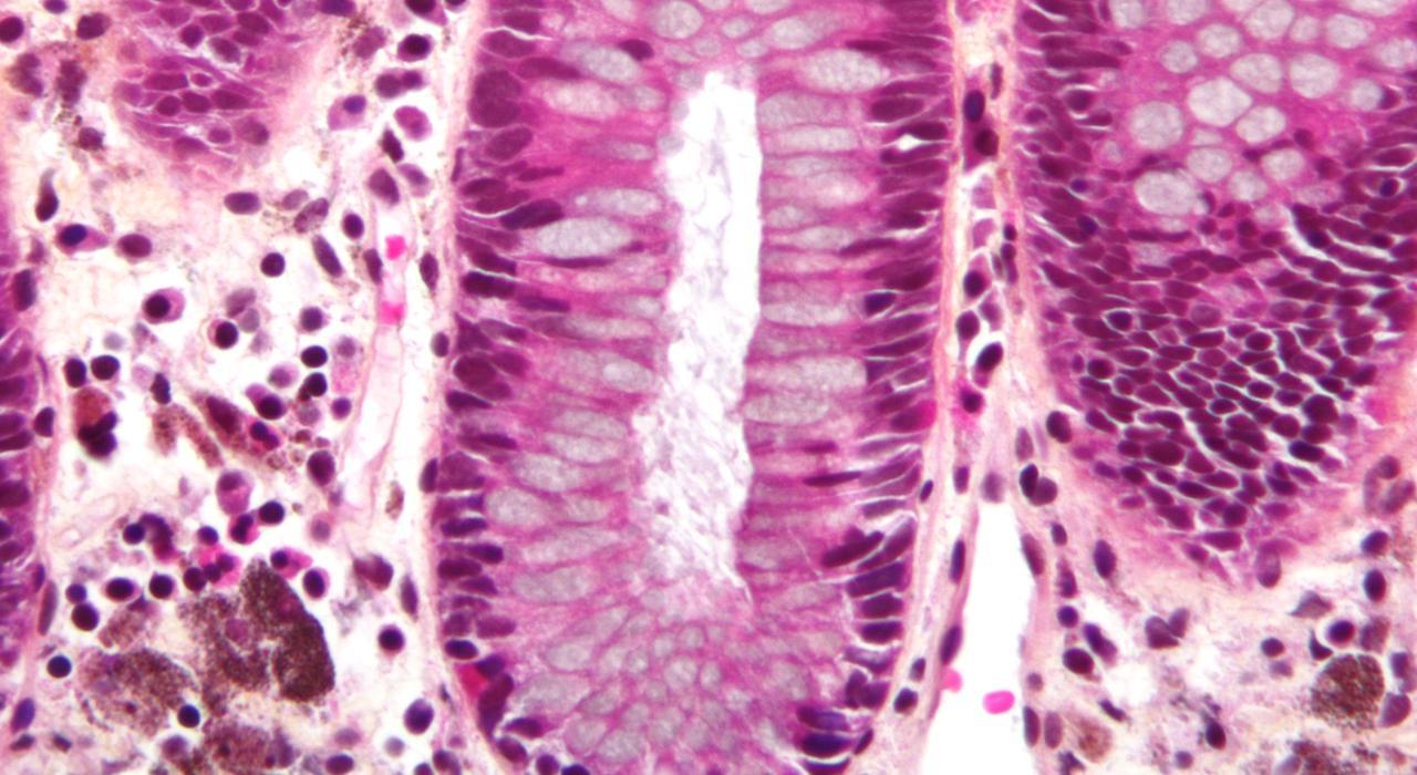 ¿La atención urgente trata las infecciones por hongos?