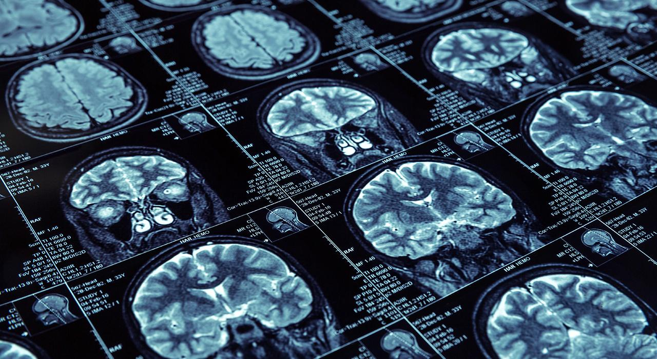 Especialización en Manejo Diagnóstico de los Tumores Cerebrales