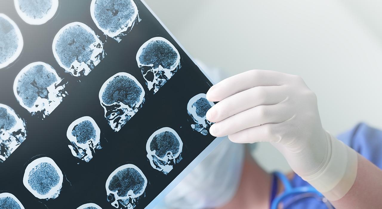 Posgrado en Manejo Diagnóstico de los Tumores Cerebrales