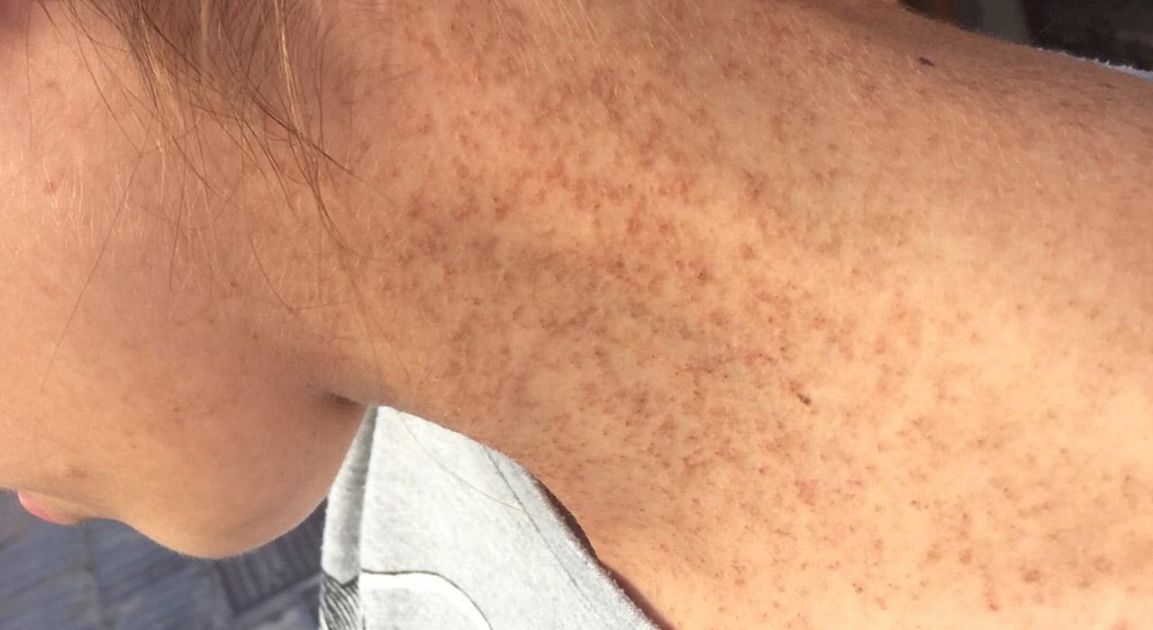 Especialización en Patología Dermatológica Más Frecuente