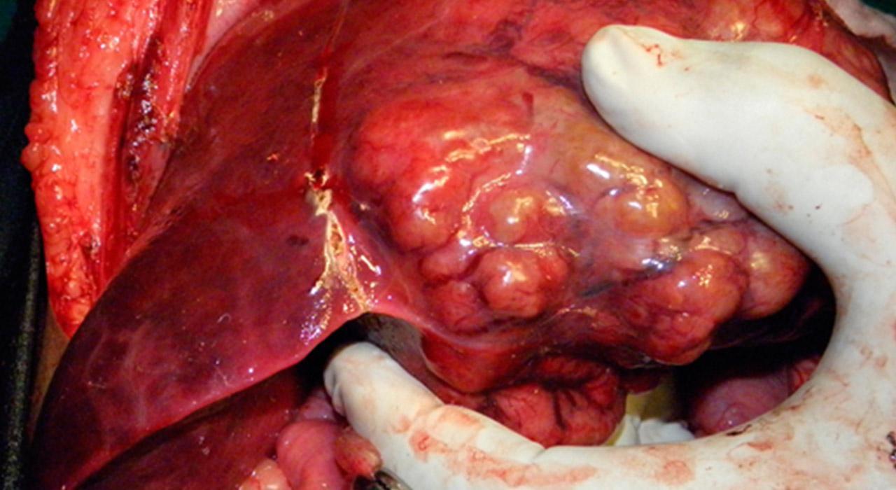 Especialización en Patología Hepática Infecciosa y Autoinmune