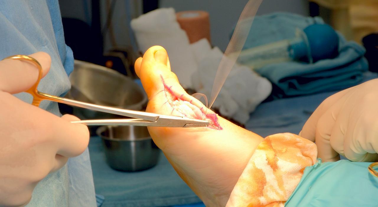 Especialización en Cirugía Ortopédica y Traumatología de Rodilla, Tobillo y Pie