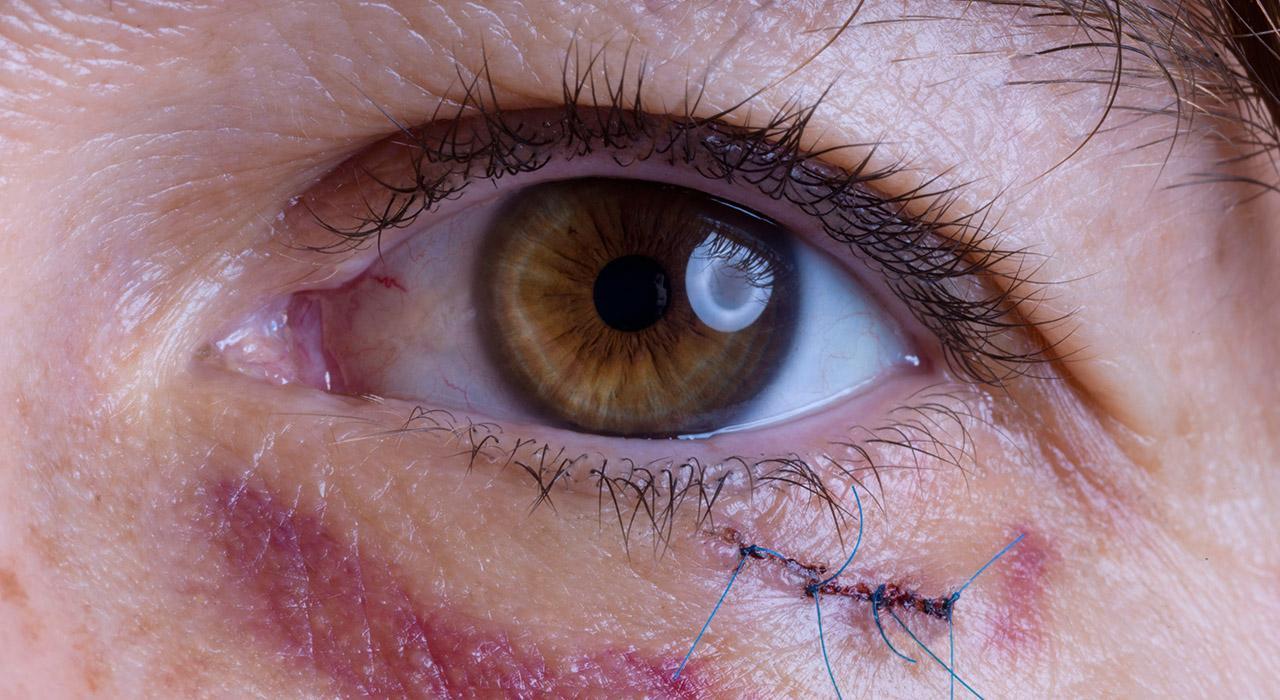 Especialización en Uveitis y Retina