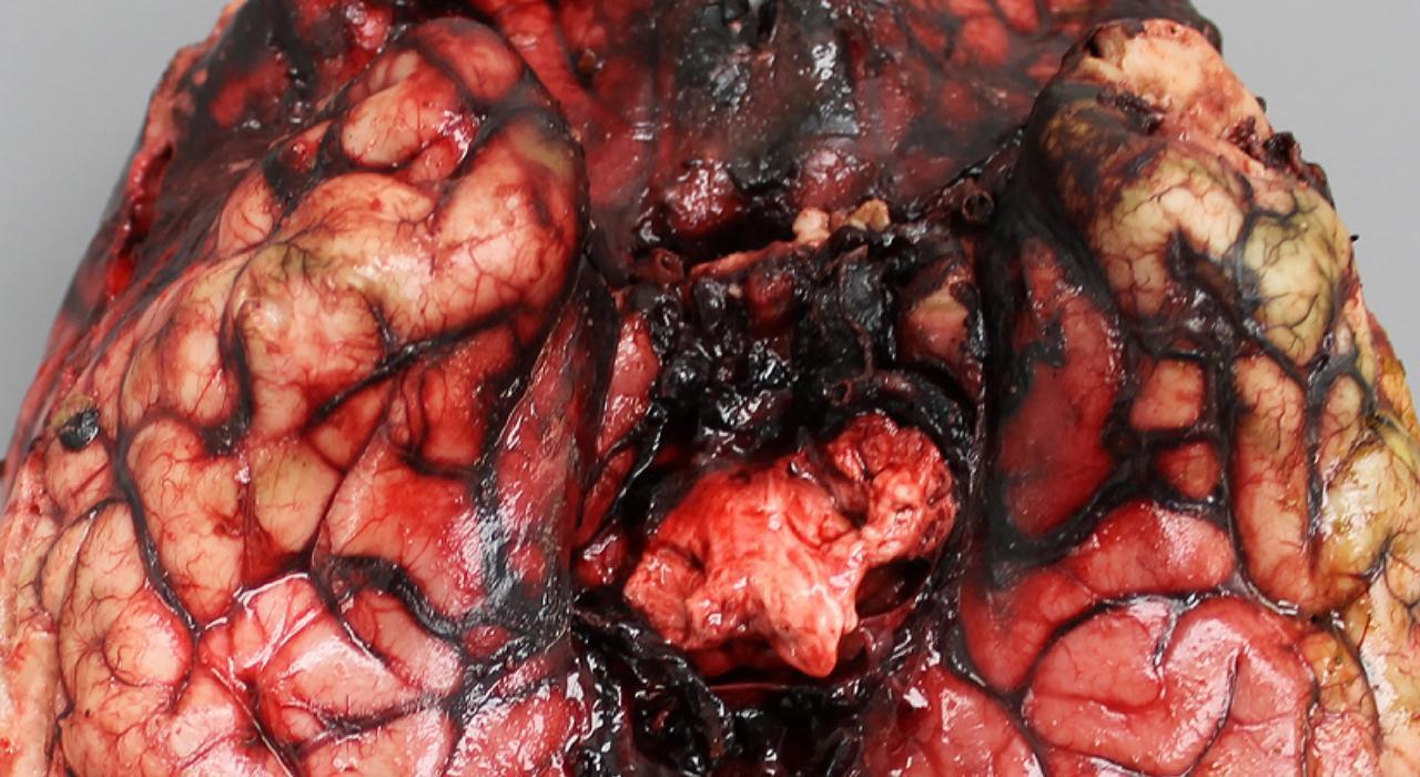Formación en Infecciones Cardiovasculares y del SNC en Urgencias