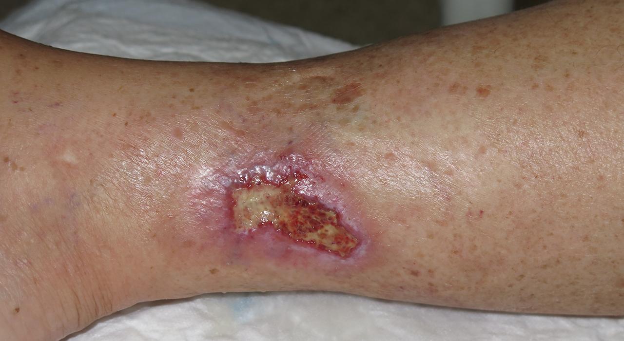 Formación en Infecciones Osteoarticulares, Piel y Partes Blandas en Urgencias