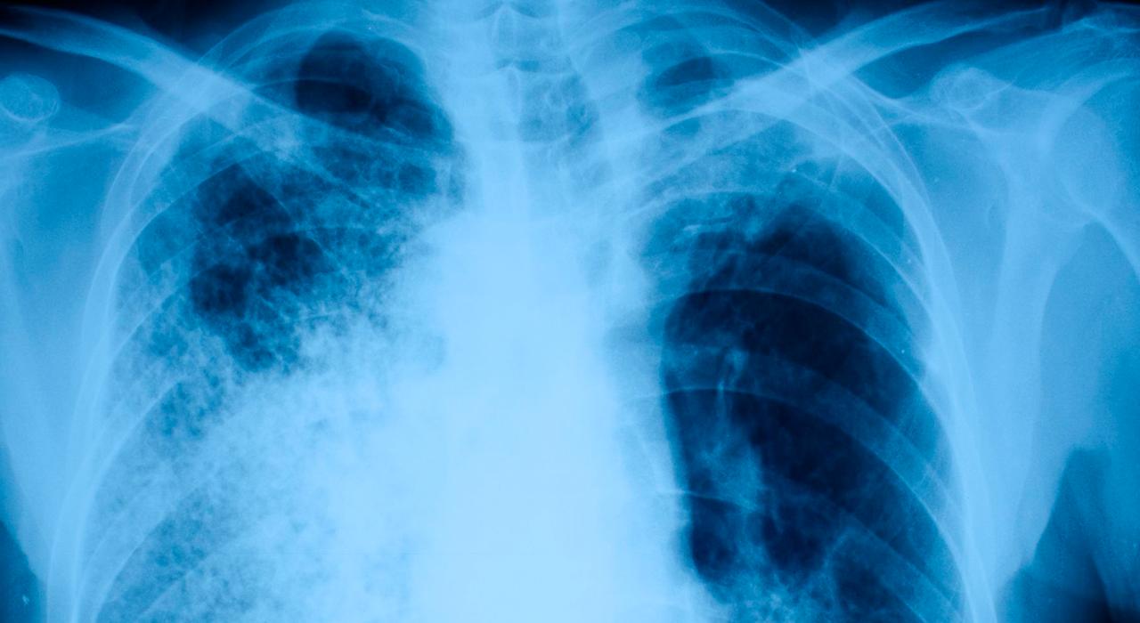 Posgrado en Enfermedades Infecciosas y Tratamiento Antimicrobiano