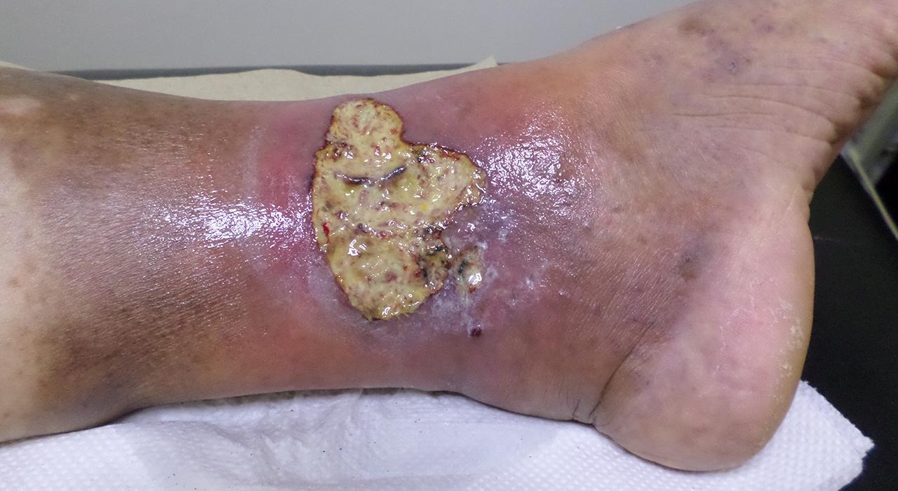 Formación en Enfermedades Infecciosas y Tratamiento Antimicrobiano