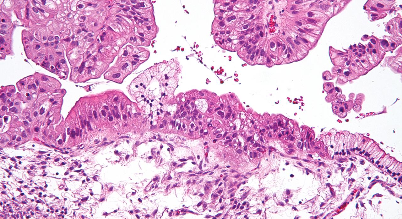 Postgrado en Ginecología Oncológica