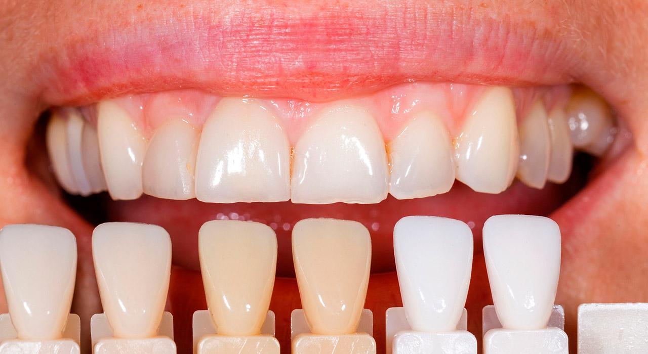 Posgrado en Adhesión y Composites para Odontólogos
