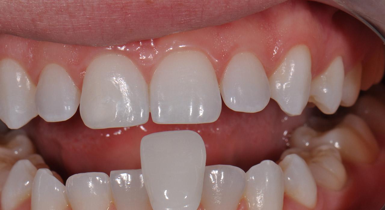 Postgrado en Adhesión y Composites para Odontólogos