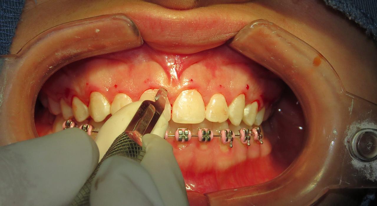 Posgrado en Blanqueamiento Dental