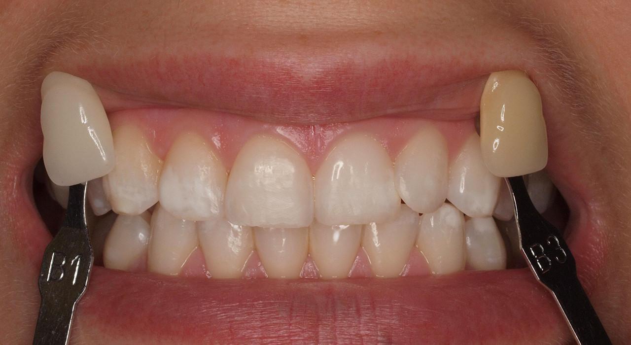 Programa en Blanqueamiento Dental