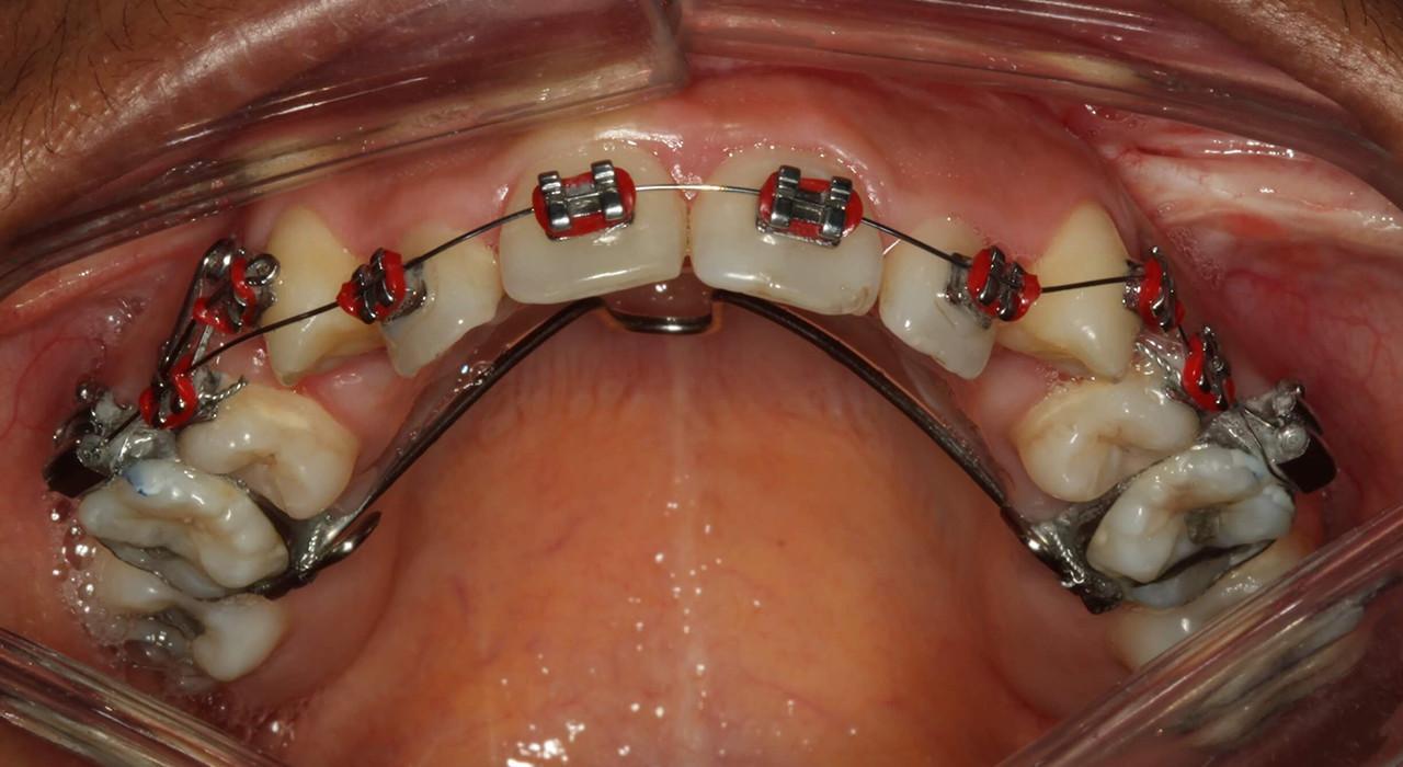 Diplomado en Ortodoncia y Cirugía Ortognática
