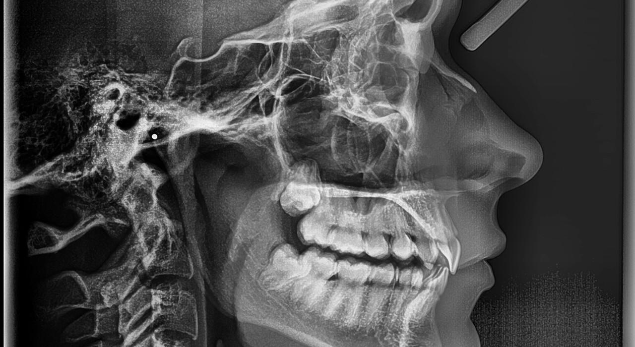 Programa en Ortodoncia y Cirugía Ortognática