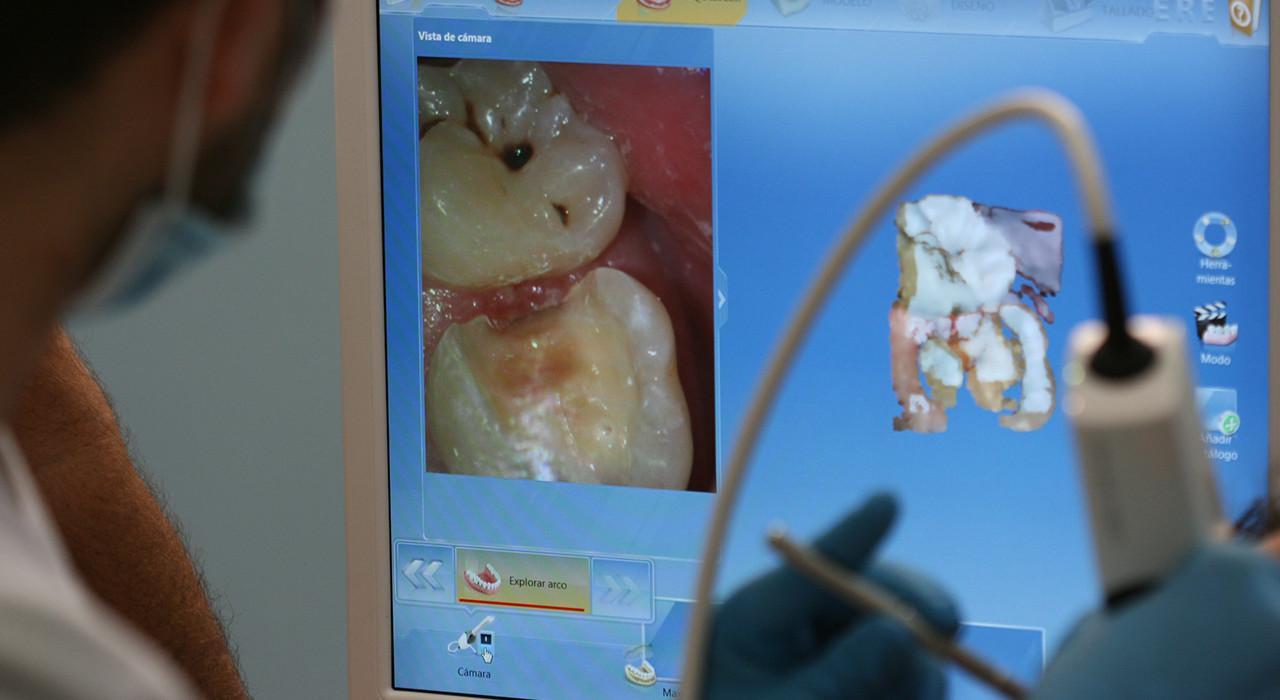 Programa en Fotografía Dental