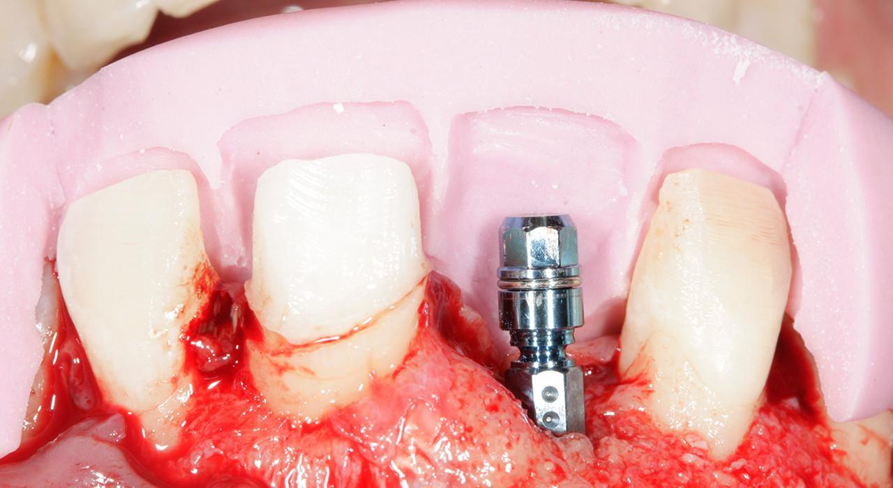 Diplomado en Implantología Estética