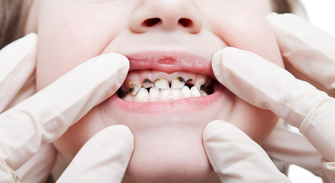 Diplomado en Odontología Pediátrica Preventiva y Caries Dental
