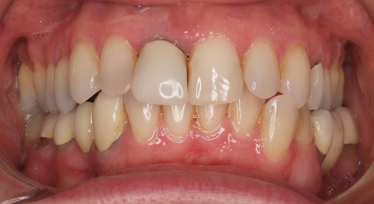 Diplomado en Ortodoncia Termoplástica