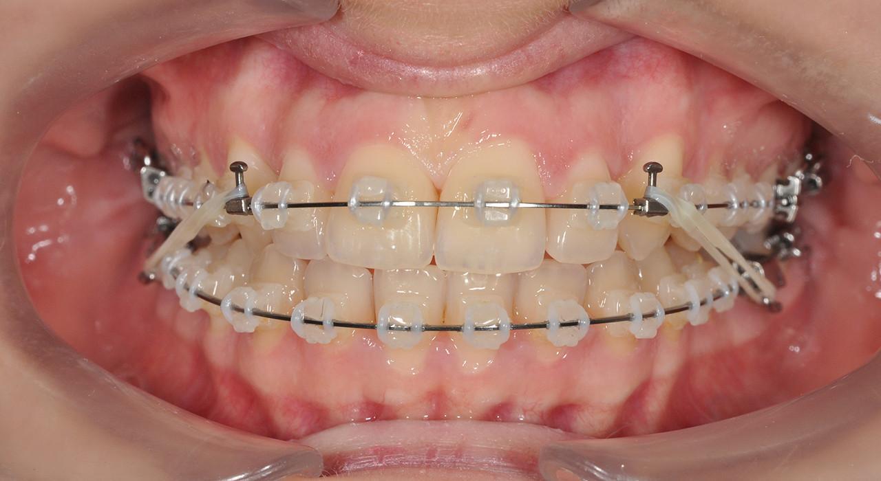 Posgrado en Ortodoncia Termoplástica