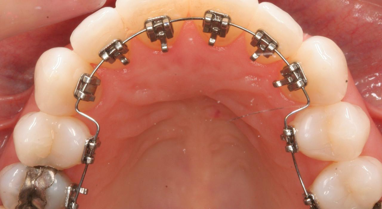 Diplomado en Ortodoncia Lingual