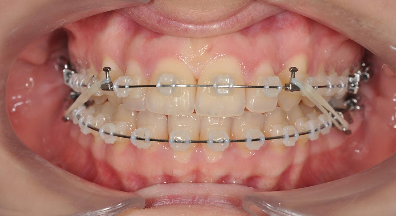 Formación en Ortopedia Dentofacial Temprana