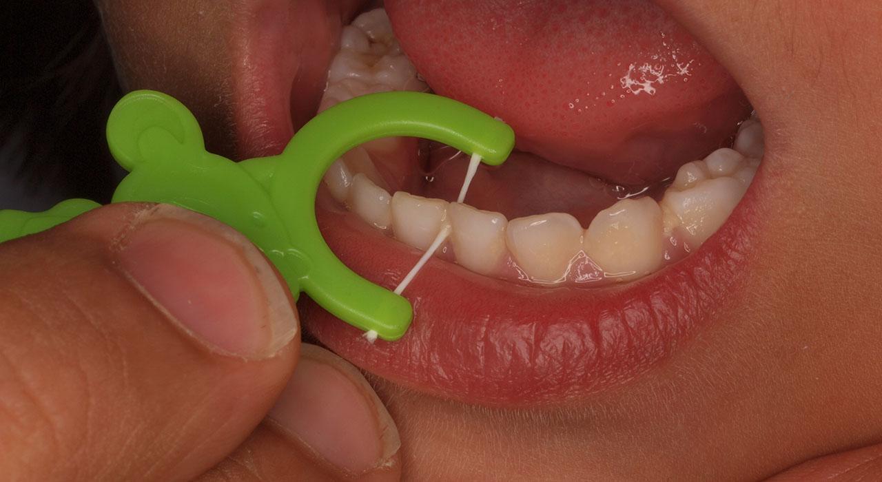 Programa en Patología Oral en Odontología Pediátrica