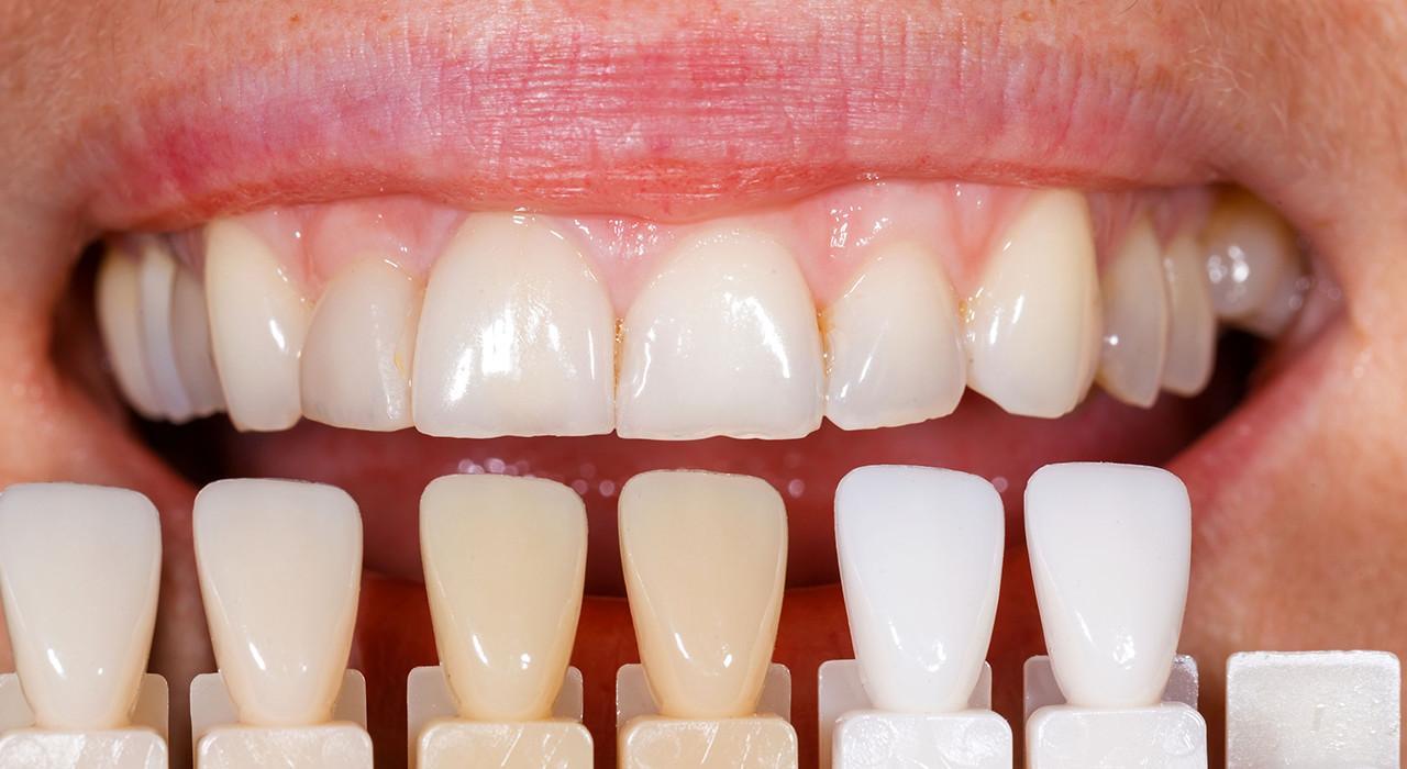 Diplomado en Utilización de Porcelanas en Odontología