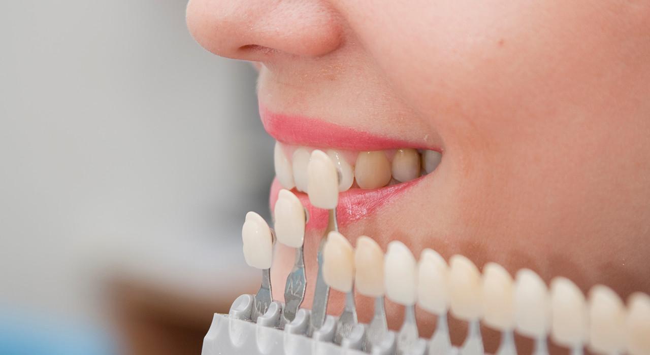 Postgrado en Utilización de Porcelanas en Odontología