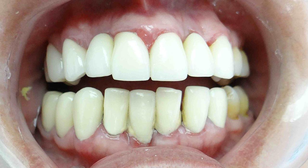 Programa en Utilización de Porcelanas en Odontología