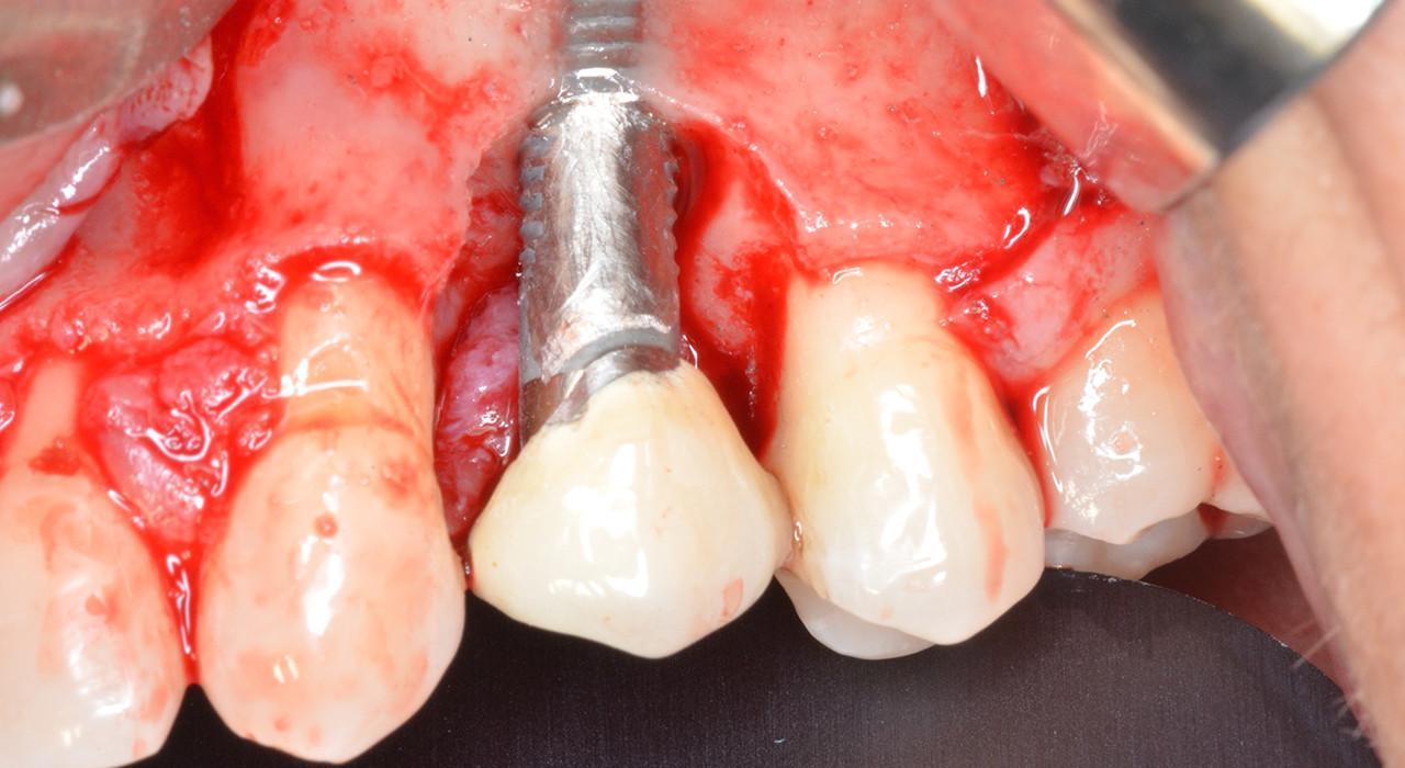 Especialización en Cirugía Regenerativa en Periodoncia