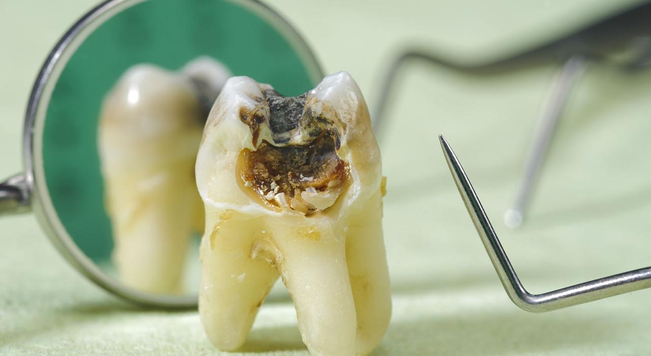 Especialización en Endodoncia Quirúrgica